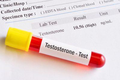 high testosterone level blood test