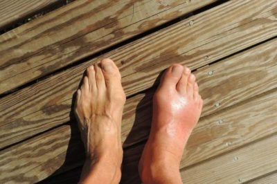 preview-full-study-shows-high-fiber-diet-may-reduce-gout-inflammation