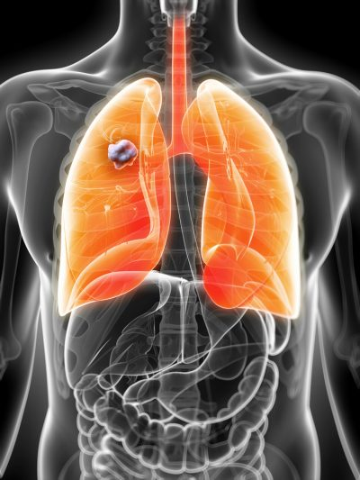 lung cancer in man