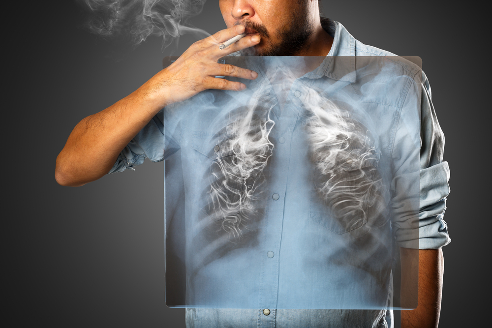 A Deep Breath: A Look into Lung Cancer