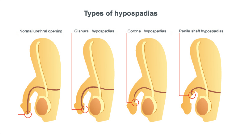 Hypospadias And Its Detrimental Psychosexual Effects