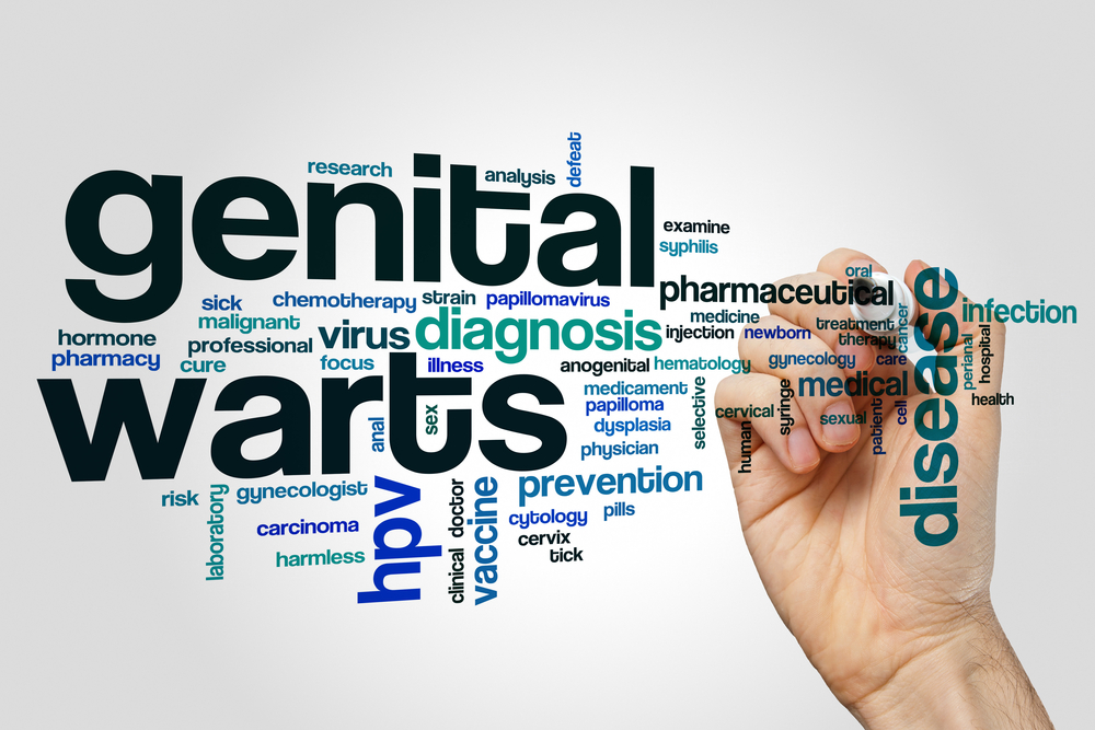 How to Treat Genital Warts