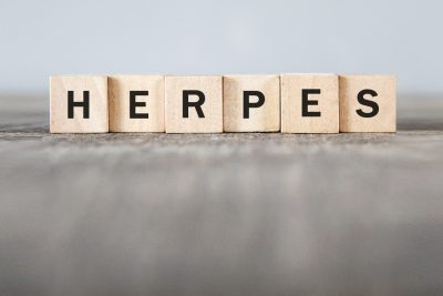 herpes can cause crotch to itch