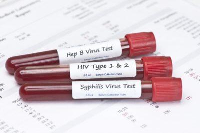 STD blood test